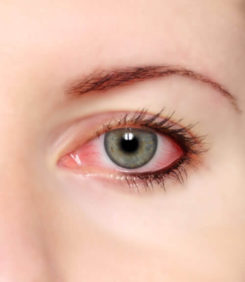 conjuntivitis-vision borrosa-oftalmologo doctor francisco dacarett honduras hospital santa lucia oftalmologia retina clinica y quirurgica