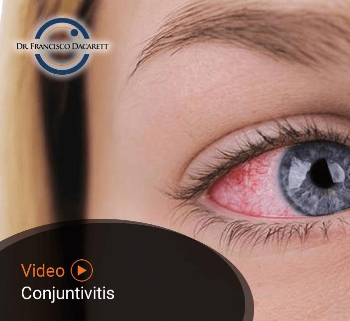 Conoce más sobre la Conjuntivitis por el oftalmólogo y retinólogo Dr. Francisco Dacarett