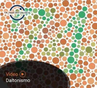 Conoce más sobre el Daltonismo por el oftalmólogo y retinólogo Dr. Francisco Dacarett