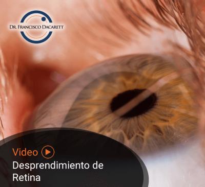Conoce más sobre el desprendimiento de retina por el oftalmólogo y retinólogo Dr. Francisco Dacarett