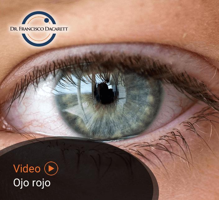 Conoce más sobre el Ojo rojo por el oftalmólogo y retinólogo Dr. Francisco Dacarett