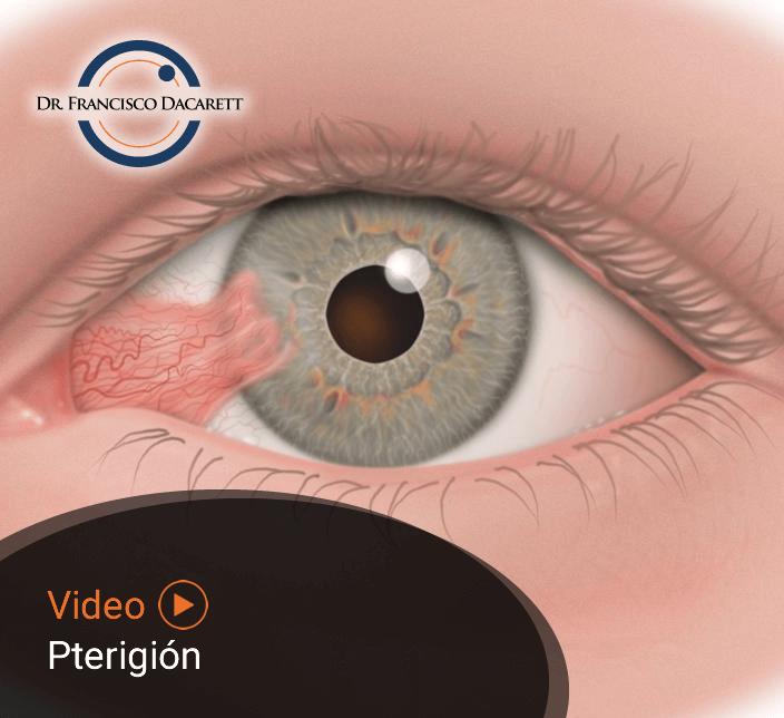 Conoce más sobre el Pterigión por el oftalmólogo y retinólogo Dr. Francisco Dacarett