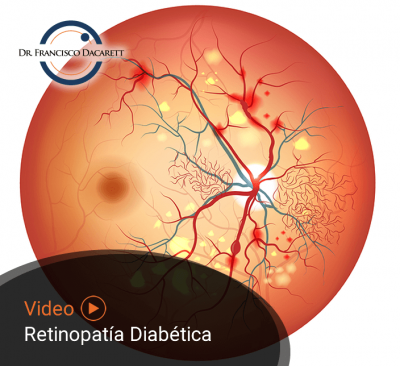 Conoce más sobre la Retinopatía Diabética por el oftalmólogo y retinólogo Dr. Francisco Dacarett